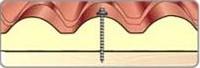 Покривен панел тип Керемида